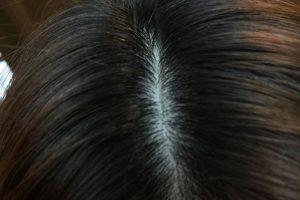 白髪の生え方