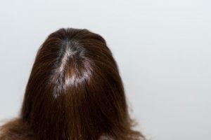 白髪染めトリートメントは乾いた髪にも使える?